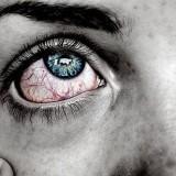 Red Irritated Lyme Eyes